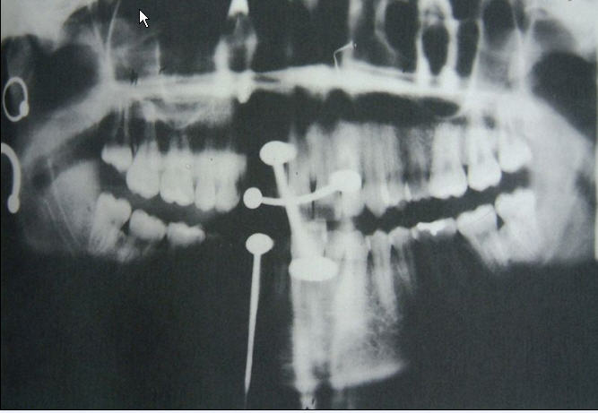 Mandible Piercing Picture Picture